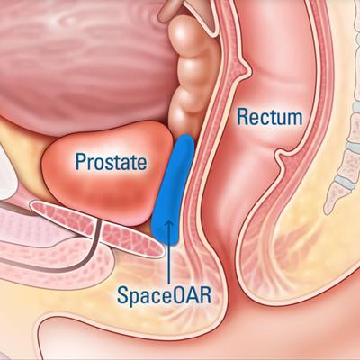 "Surgeons give men a little ""space"" during prostate cancer treatment"